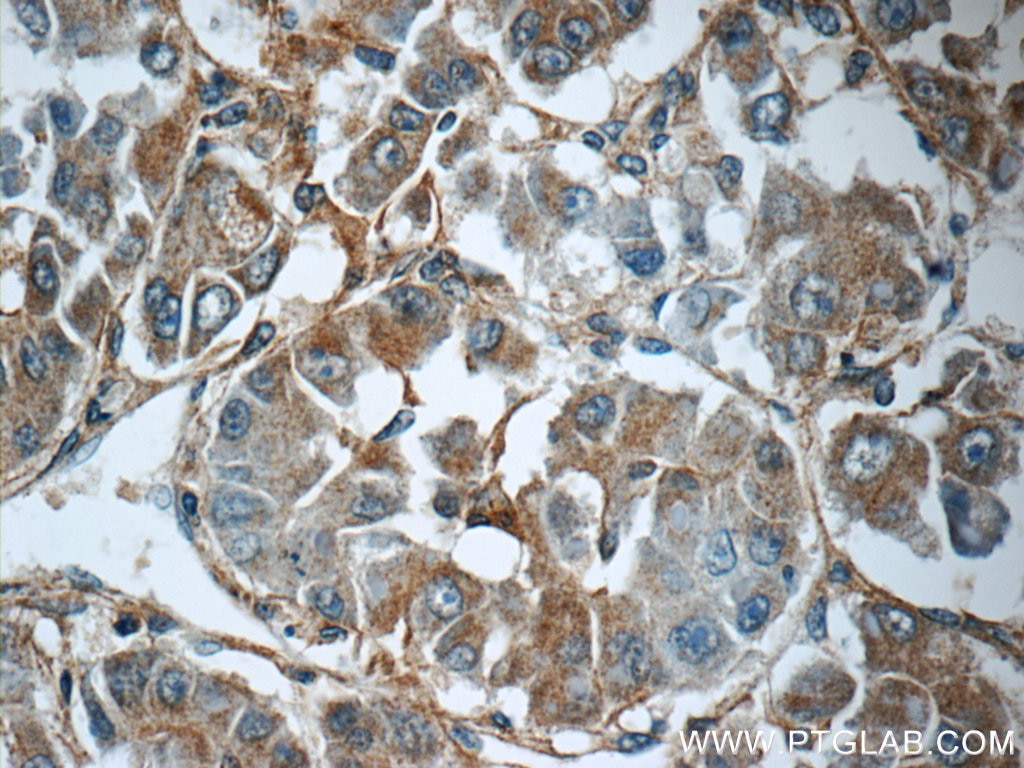 IHC staining of human liver cancer using 15989-1-AP
