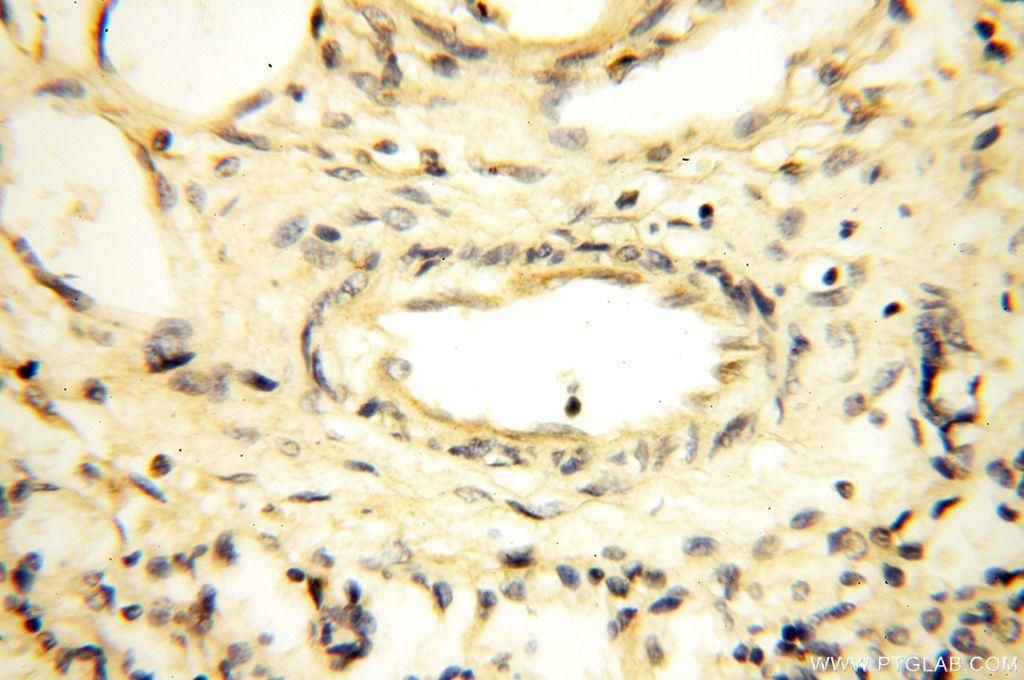 17280-1-AP;human lung tissue