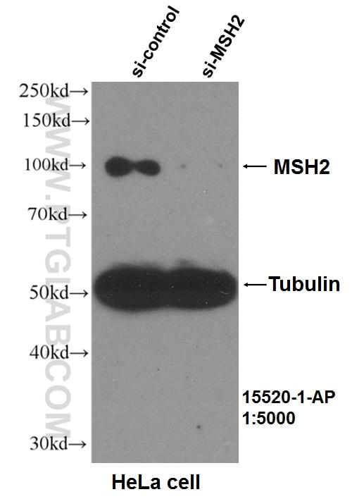 WB analysis of HeLa using 15520-1-AP