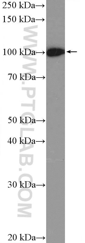 WB analysis of A2780 using 15520-1-AP