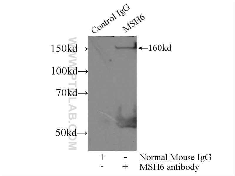 IP experiment of HEK-293 using 66172-1-Ig