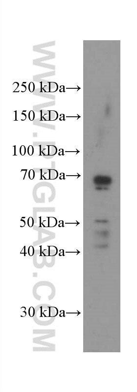WB analysis of HeLa using 66404-1-Ig
