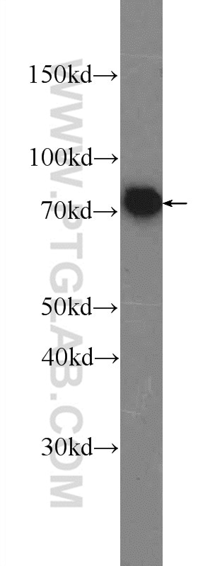 WB analysis of SGC-7901 using 16495-1-AP
