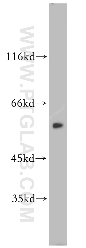 WB analysis of HeLa using 19650-1-AP
