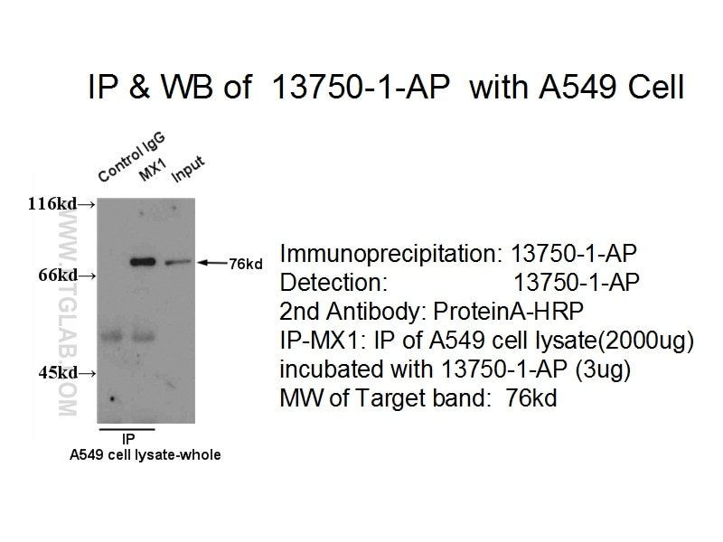 IP experiment of A549 cells using 13750-1-AP