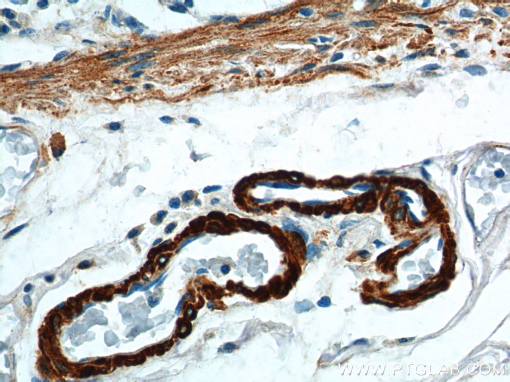 SMMHC Polyclonal antibody