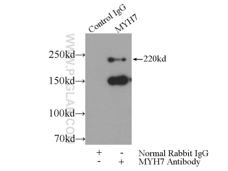 IP experiment of mouse heart using 22280-1-AP