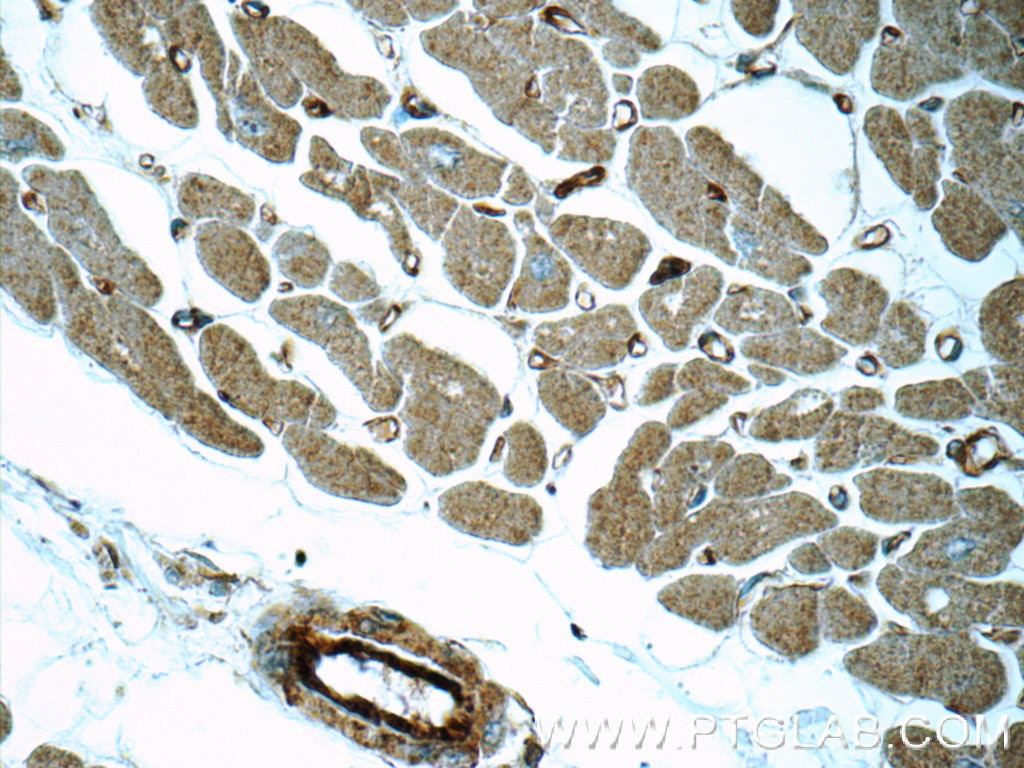 IHC staining of human heart using 16287-1-AP