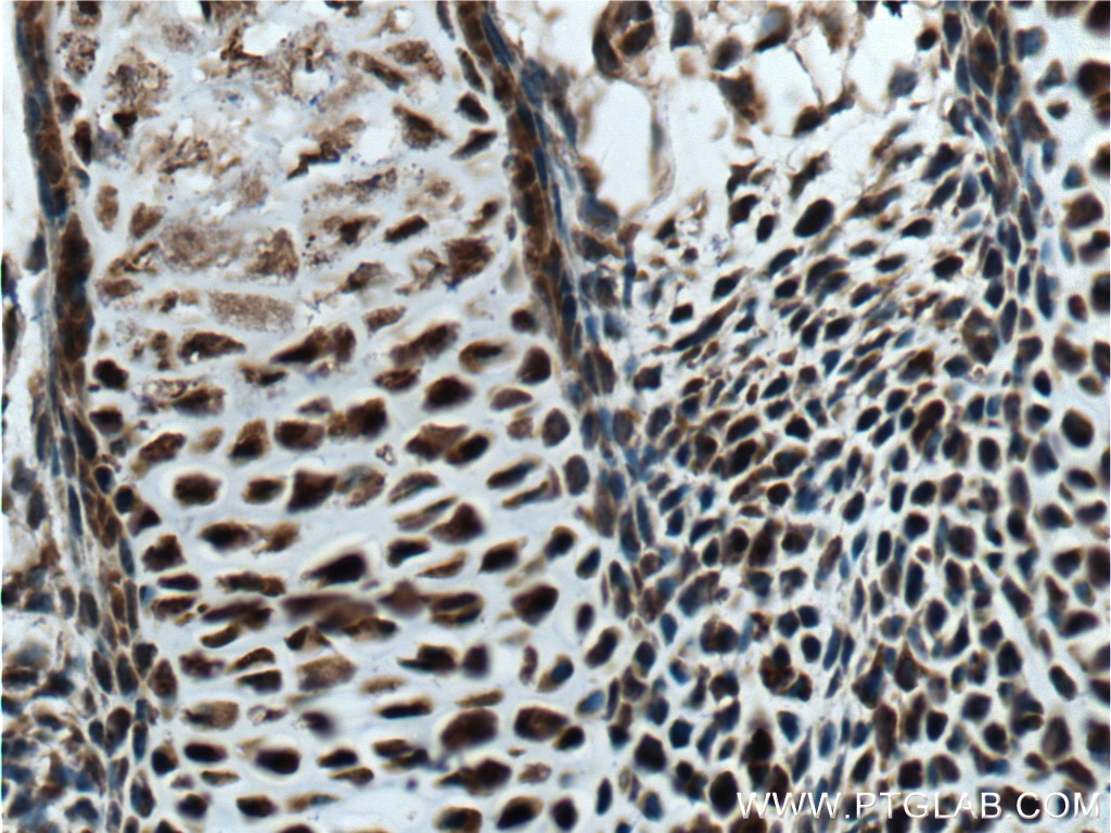 IHC staining of mouse embryo using 18943-1-AP
