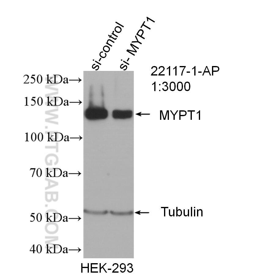 WB analysis of HEK-293 using 22117-1-AP