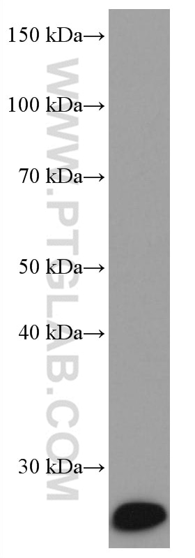 WB analysis of human skeletal muscle using 67082-1-Ig