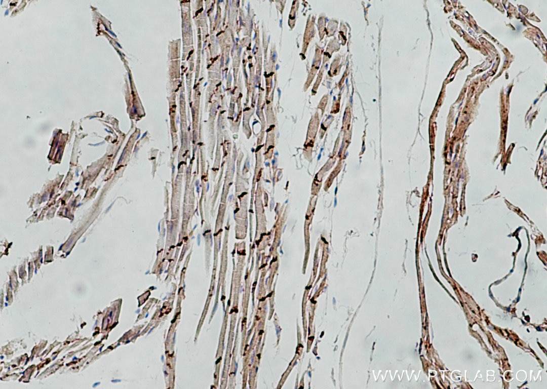 IHC staining of mouse heart using 22018-1-AP