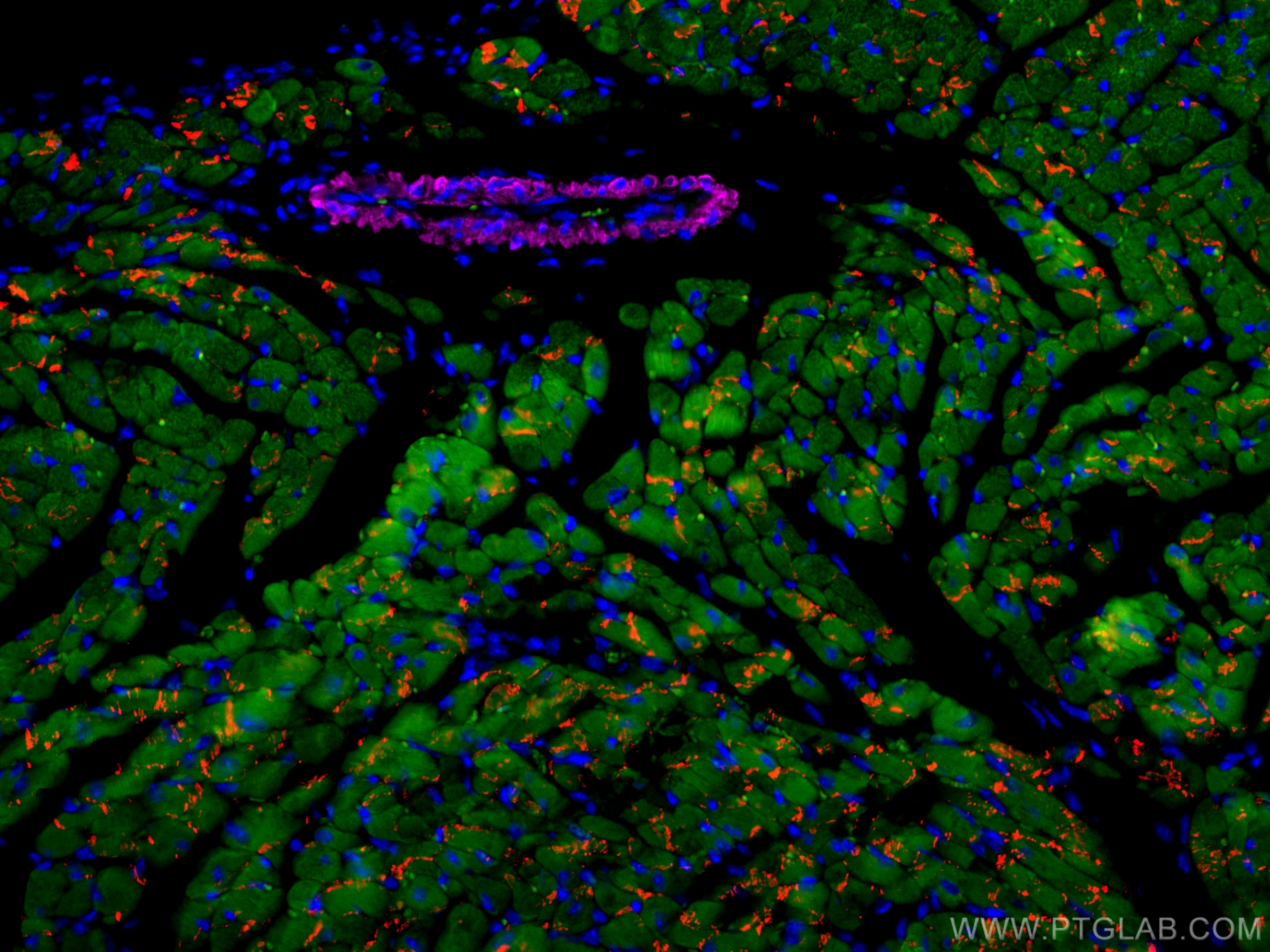 IF Staining of mouse heart using CL594-22018