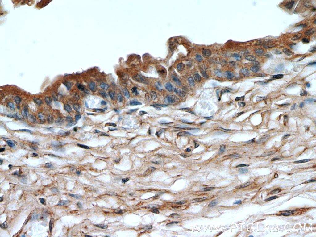 Nalp3 Antibody 19771 1 Ap