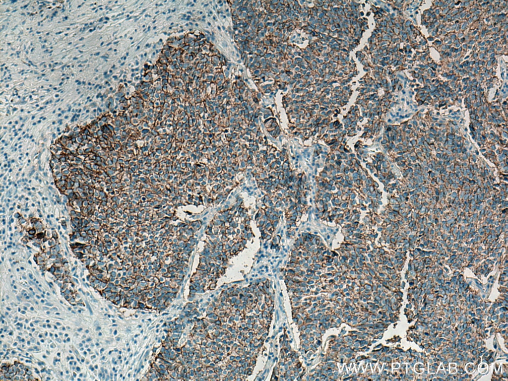 IHC staining of human lung cancer using 14255-1-AP