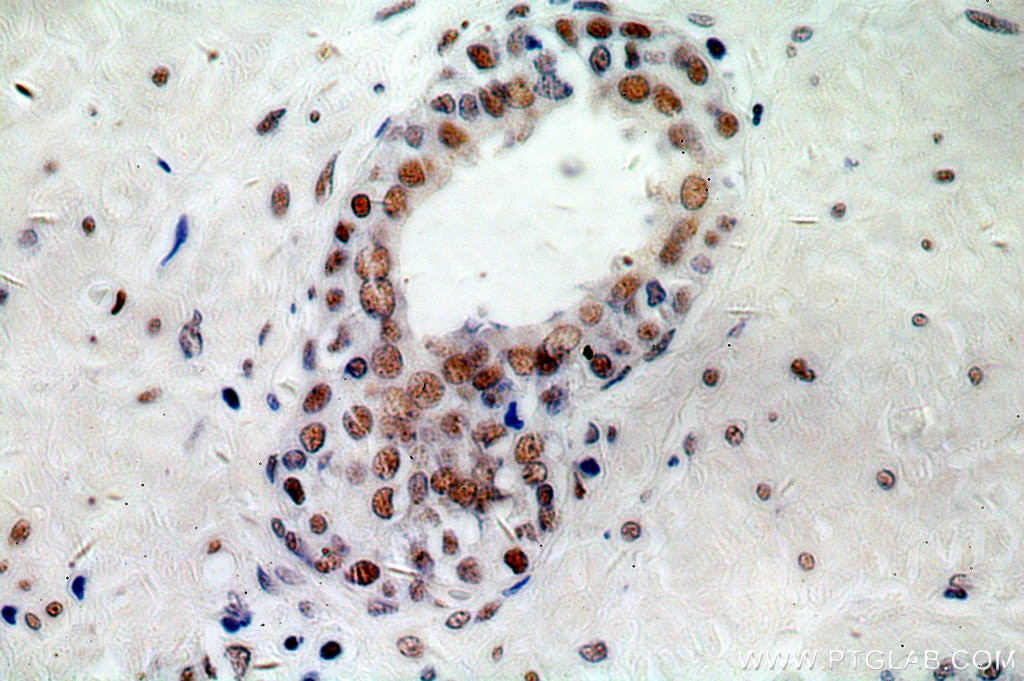 IHC staining of human prostate cancer using 10556-1-AP