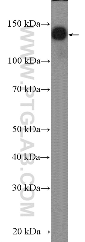 NF-M Polyclonal antibody
