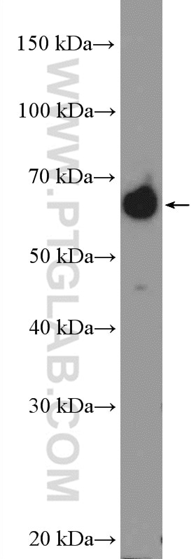 WB analysis of BxPC-3 using 16418-1-AP