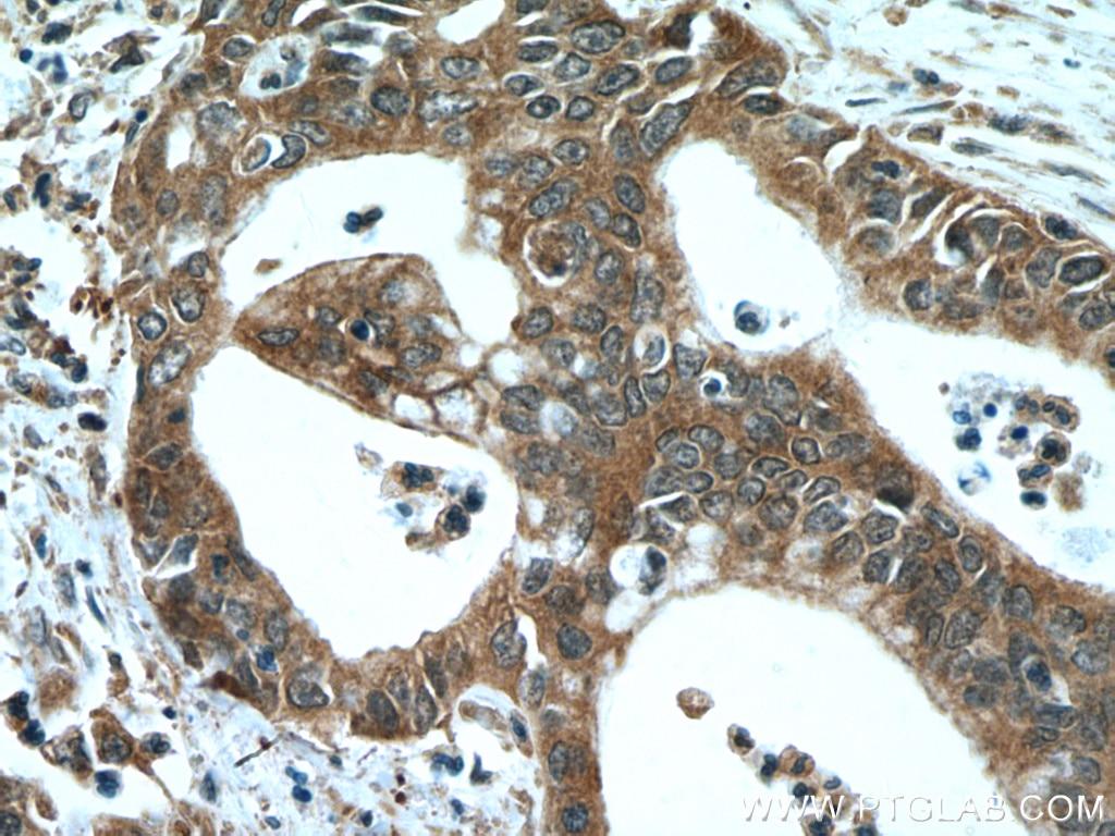 IHC staining of human pancreas cancer using 66691-1-Ig