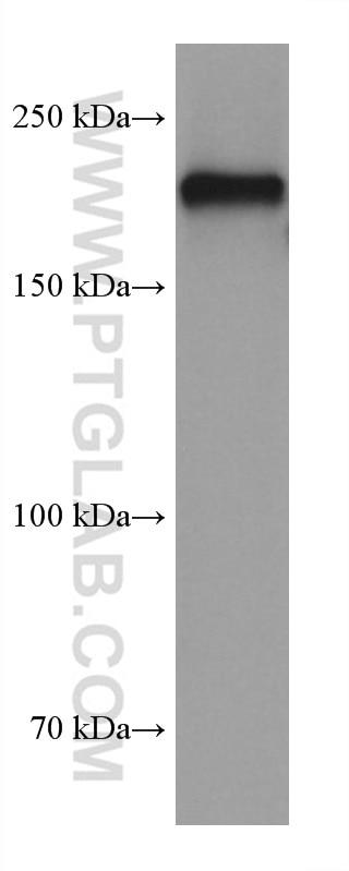WB analysis of pig cerebellum using 60331-1-Ig