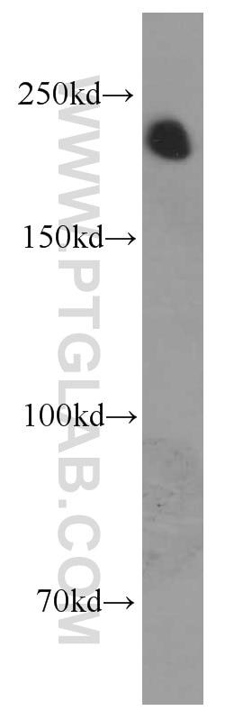 WB analysis of pig brain using 60331-1-Ig