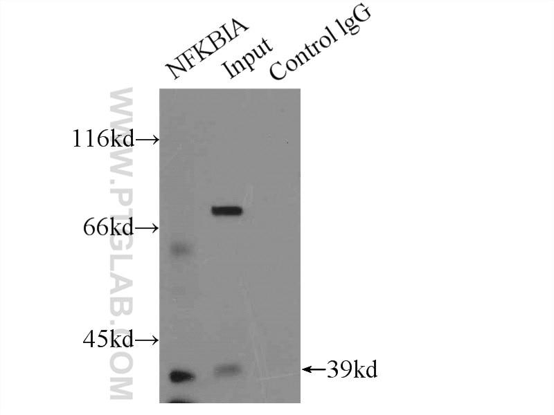 IP experiment of HeLa using 18220-1-AP
