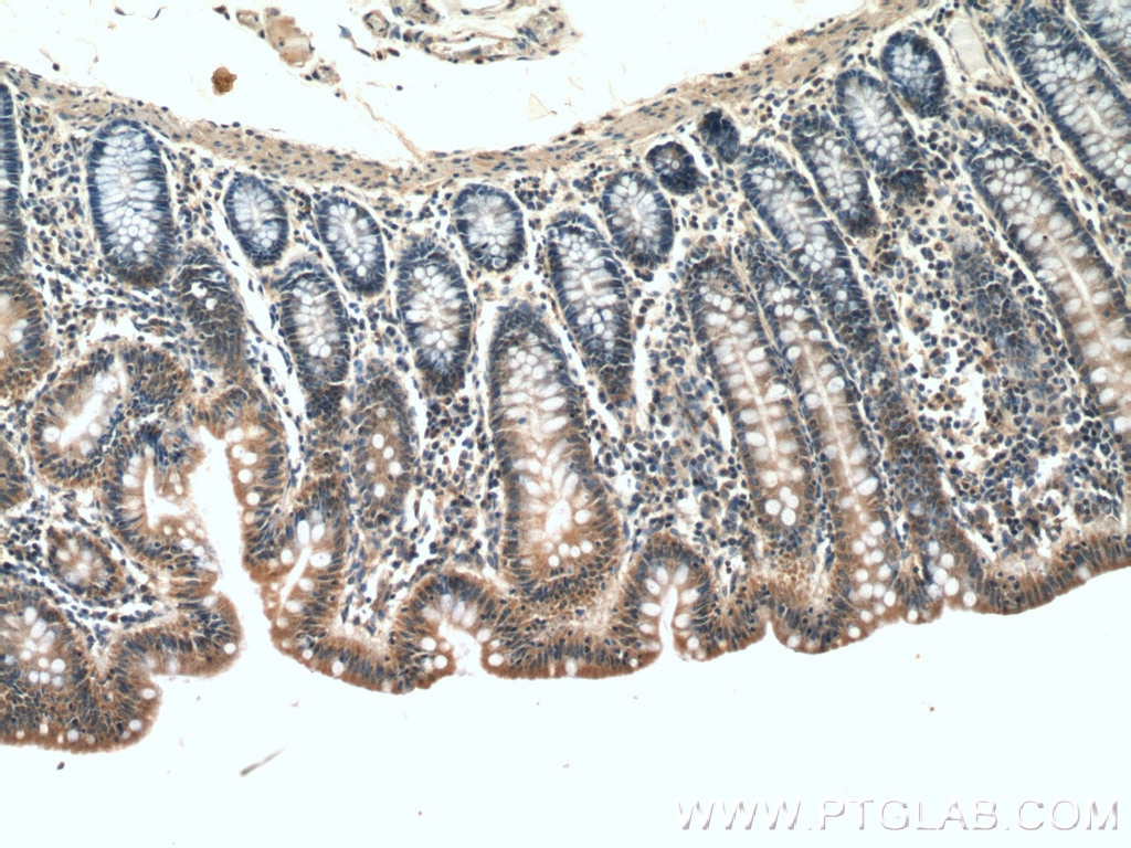IHC staining of human colon using 12660-1-AP