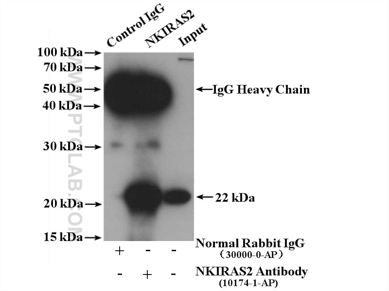IP experiment of HEK-293 using 10174-1-AP