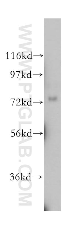 NLN Polyclonal antibody
