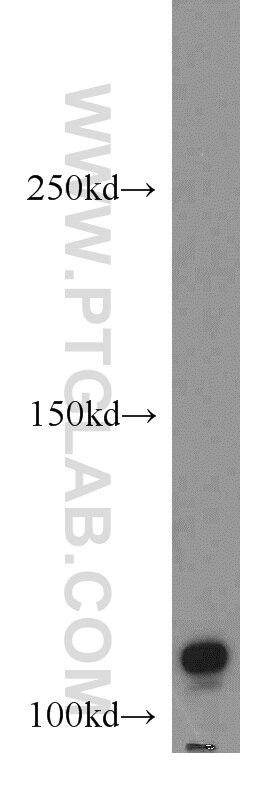 WB analysis of A549 using 15182-1-AP