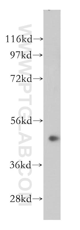 WB analysis of Jurkat using 14456-1-AP