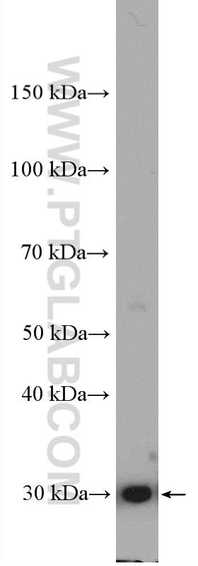 WB analysis of K-562 using 11451-1-AP