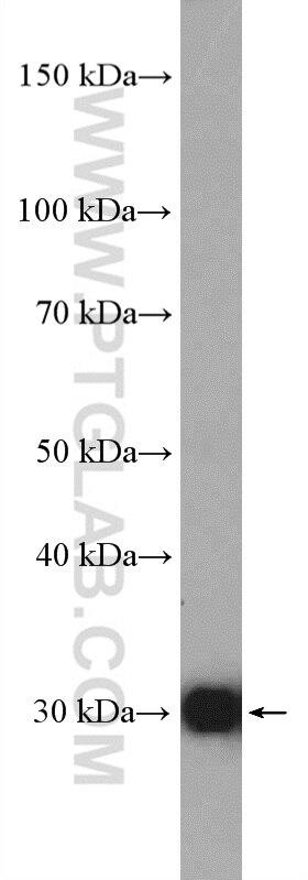 WB analysis of HepG2 using 11451-1-AP