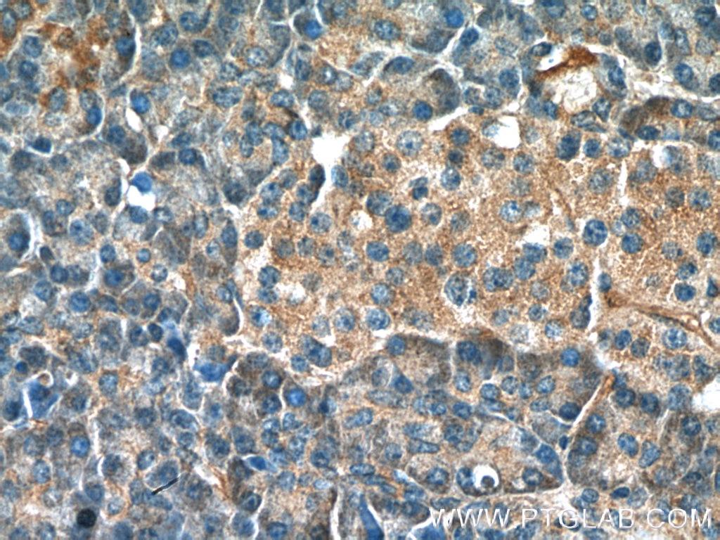 IHC staining of human pancreas using 10724-1-AP