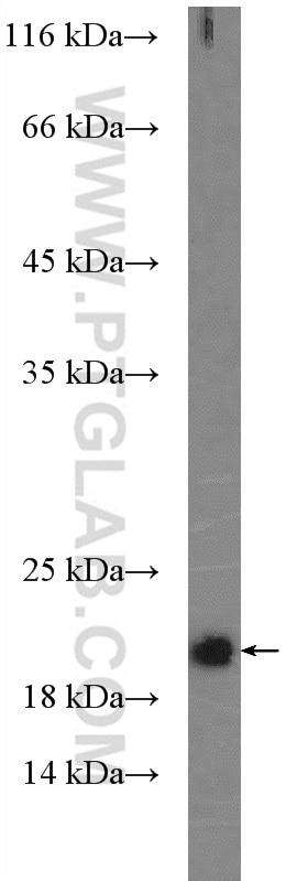 WB analysis of HEK-293 using 10724-1-AP