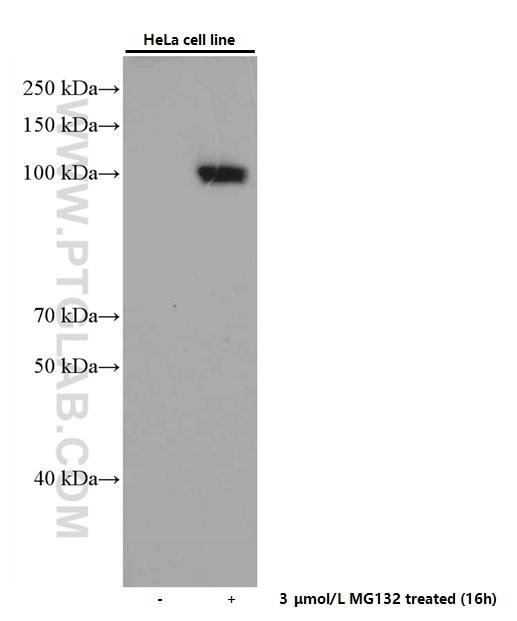 WB analysis of HeLa using 66504-1-Ig