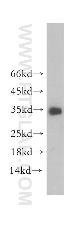 Neurotrophin 3 Polyclonal antibody