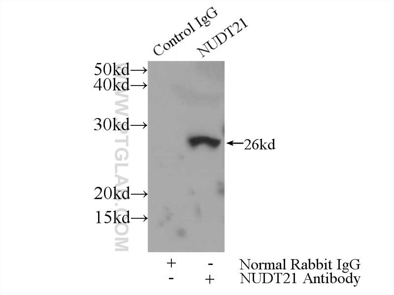 IP experiment of HeLa using 10322-1-AP