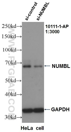 WB analysis of HeLa using 10111-1-AP