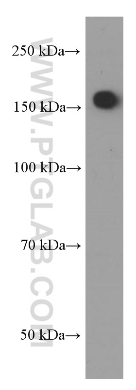 WB analysis of Neuro-2a using 66259-1-Ig
