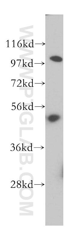 WB analysis of HeLa using 14955-1-AP