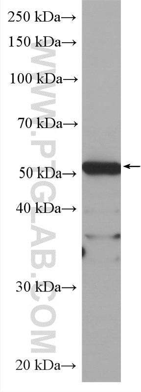 WB analysis of HEK-293 using HRP-60242