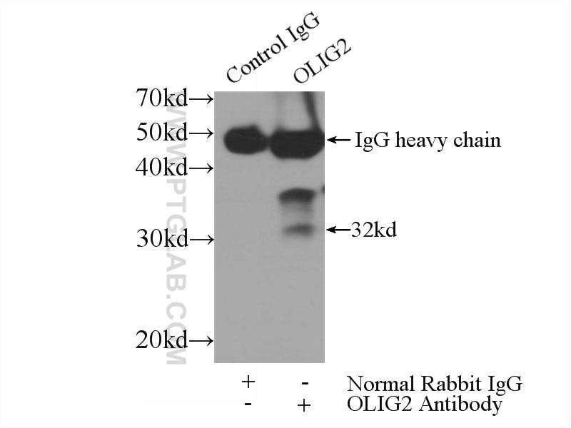13999-1-AP;mouse brain tissue
