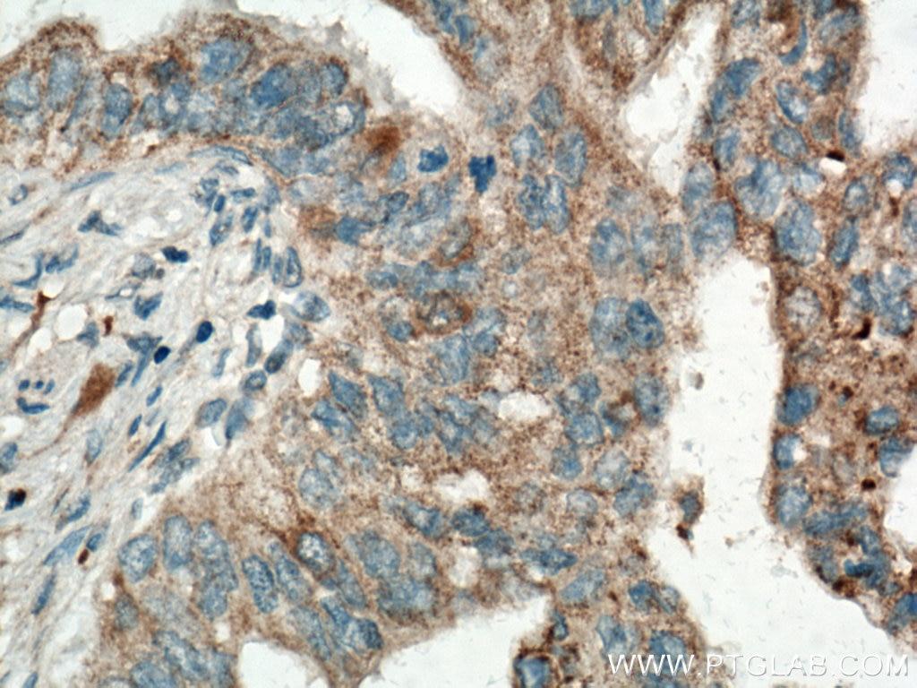 IHC staining of human pancreas cancer using Biotin-60293
