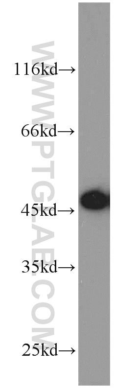 WB analysis of Jurkat using 13130-1-AP