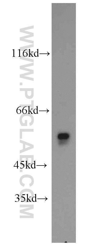 WB analysis of mouse testis using 17122-1-AP