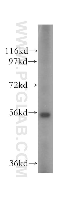 OXCT2 Polyclonal antibody