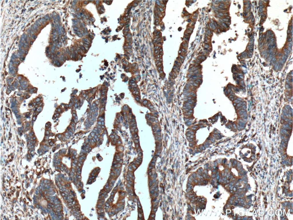 IHC staining of human colon cancer using 66378-1-Ig