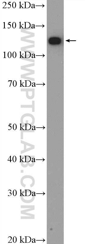 WB analysis of Jurkat using 11815-1-AP