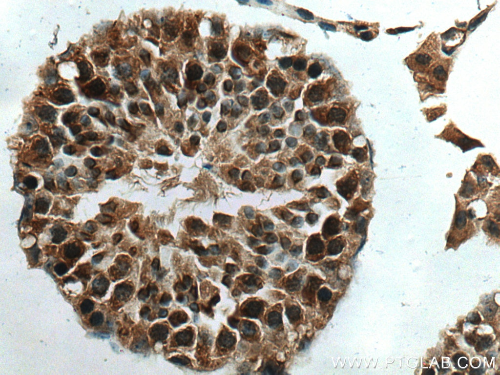 IHC staining of mouse testis using 10272-2-AP